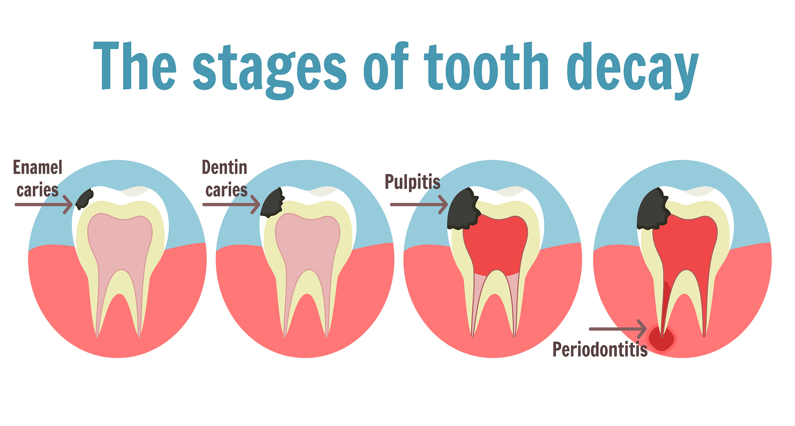 The Stages Of Tooth Decay Infographic. Dental Toothache