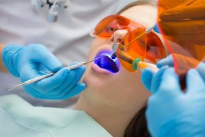 Girl patient in the dental clinic. Teeth whitening UV lamp with photopolymer composition.