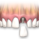 Single teeth implant