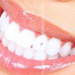 Tooth Gems